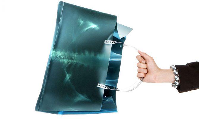 Selbstanlieferung von Röntgenfilmen